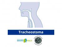 tracheostoma.nl