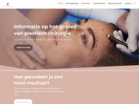 ietslatendoen.nl