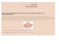 implantaat-prothese.nl